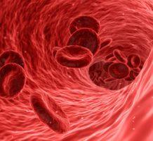New statin shrinks artery-clogging plaque