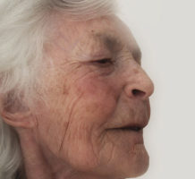 Is speech therapy helpful after a stroke?