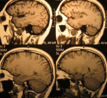 Better early dementia detection is urged