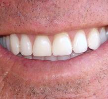 Can healthy gums prevent Alzheimer's?
