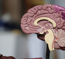 Stroke survivors can help future recovery