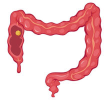 What can I take to prevent colorectal cancer?